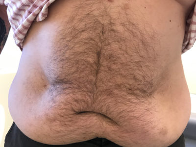 Top 10 Benefits of Getting a Gastric Sleeve