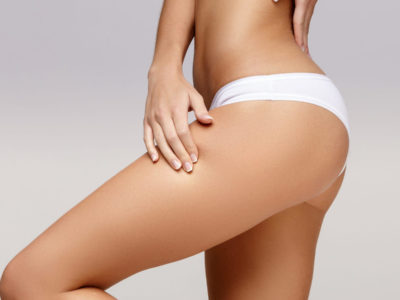 Thigh Lift Procedure Description
