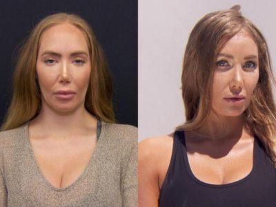 Hairline Lowering Surgery FAQ