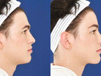 Top 6 Benefits of Facial Feminization Surgery (FFS)