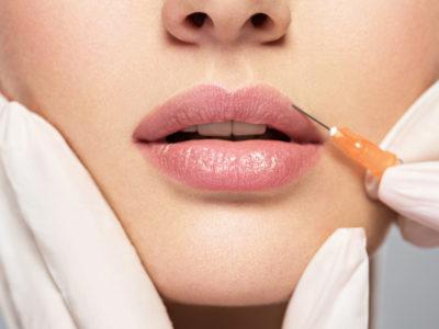 Lip Fillers FAQ