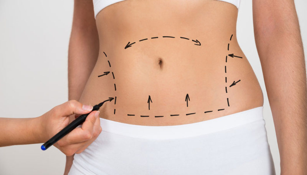 6 Benefits of CoolSculpting Treatments