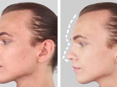 Facial Feminization Surgery (FFS) FAQ