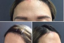 Benefits and Expectations of Hairline Lowering Surgery