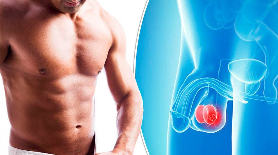 Benefits and Risks to Having a Simple Orchiectomy ...