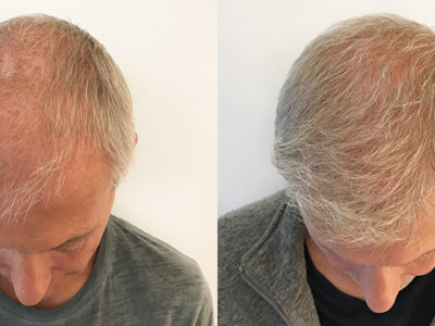 The Benefits of a Hair Transplant
