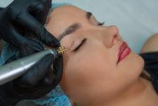 Eyelid Surgery Procedure Description