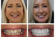 The Benefits of Veneers that will Improve my Smile