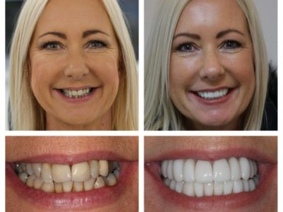 The Benefits of Veneers that will Improve my Smile