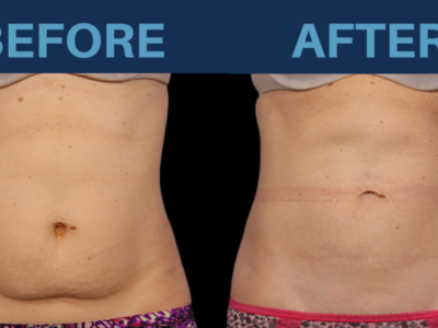 Top Answers to Having CoolSculpting Treatments in Thailand