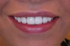 Top 3 Reasons to Getting a Perfect Smile with Veneers in Turkey
