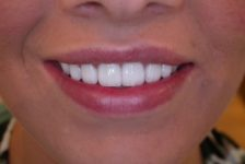 Top Tips on Having Veneers in Thailand