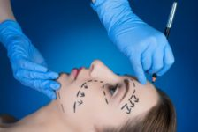 Top 5 Reasons to Have a Facelift to Restore a Younger You in Thailand