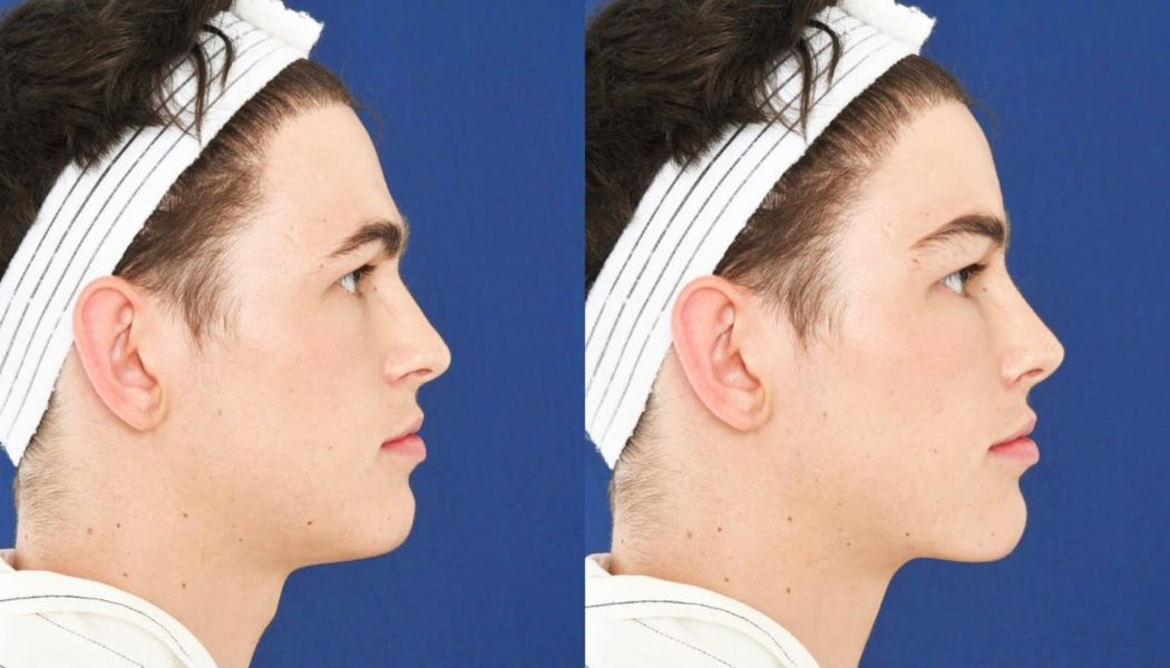 Top Locations for a Facial Feminization Surgery (FFS) in Thailand