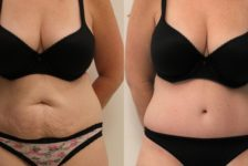 Top 8 reasons to have Tummy Tuck Surgery in Thailand