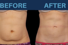 Top Facts on Having CoolSculpting in Turkey