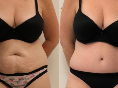 Top 8 reasons to have Tummy Tuck Surgery in Turkey