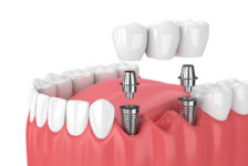 Top Facts on Having Dental Implants in Thailand