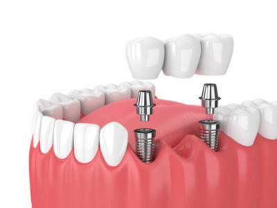 Top Facts on Having Dental Implants in Turkey