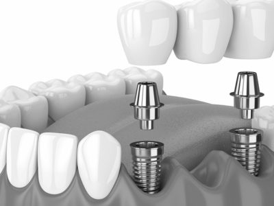 Top Tips to Improve Your Smile With an All-on-2 Dental Implants in Bangkok