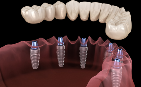 Top Tips to Improve Your Smile With an All-on-6 Dental Implants in Bangkok
