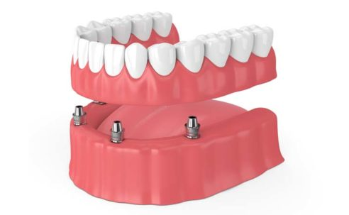 Top Tips to Improve Your Smile With an All-on-4 Dental Implants in Bangkok