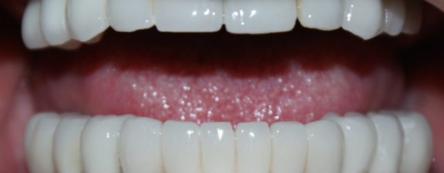 Top Tips to Improve Your Smile With an All-on-8 Dental Implants in Bangkok