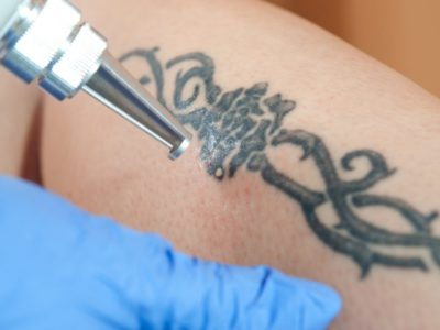 Top Cities for Laser Tattoo Removal