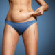 What can Liposuction do for my Appearance?