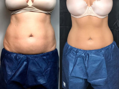 Is Coolsculpting a Good Alternative to Liposuction?