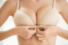 Breast Implant Revision Procedure Description