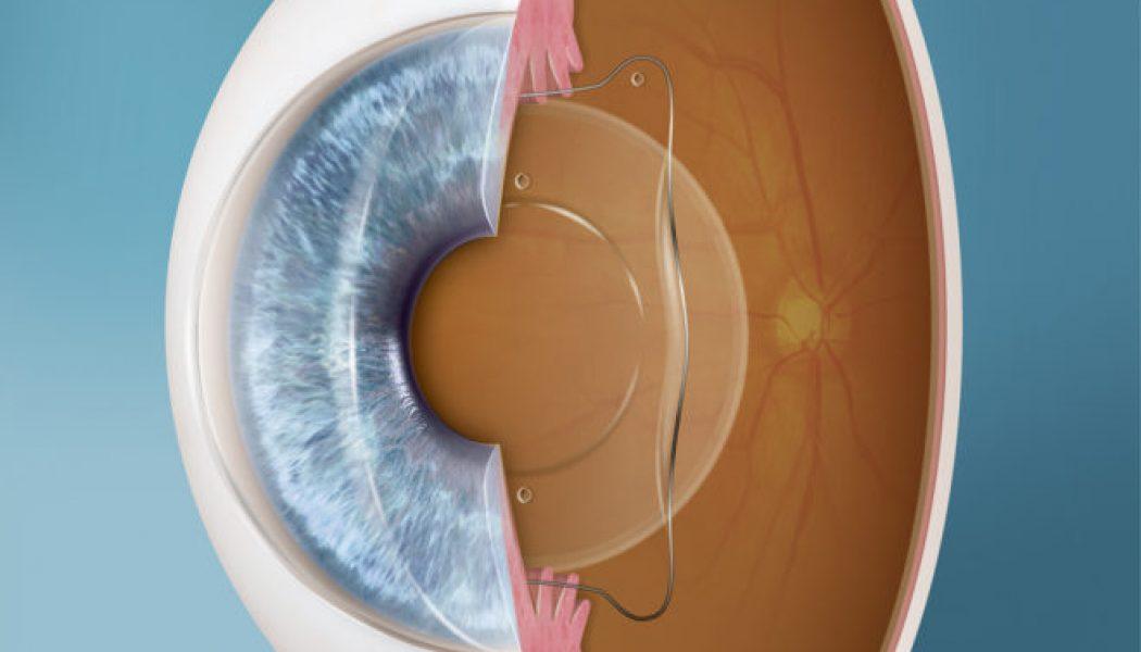 Implantable Contact Lens (ICL) Procedure Description