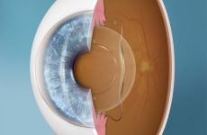 Implantable Contact Lens (ICL) Procedure Description