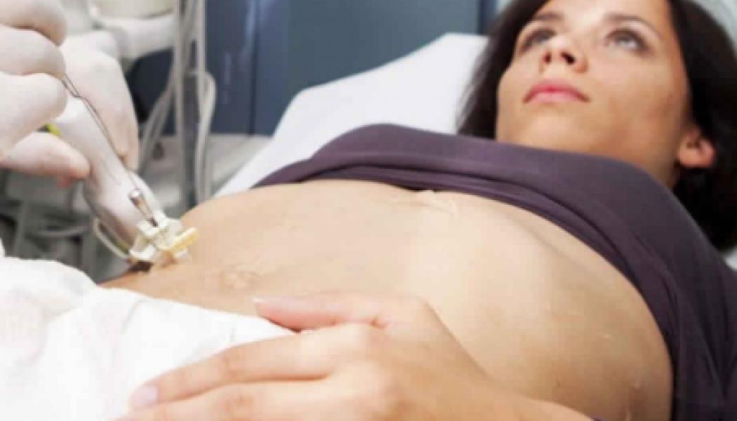 Liver Biopsy Procedure Description
