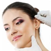Otoplasty Procedure Description
