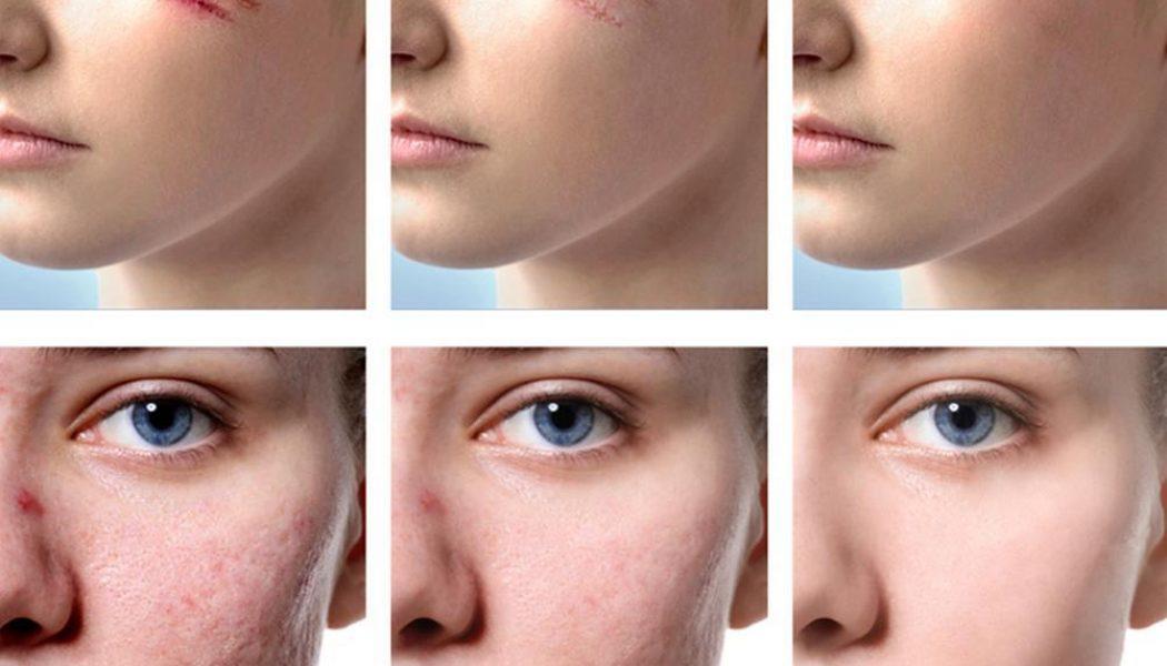 Scar Removal Procedure Description