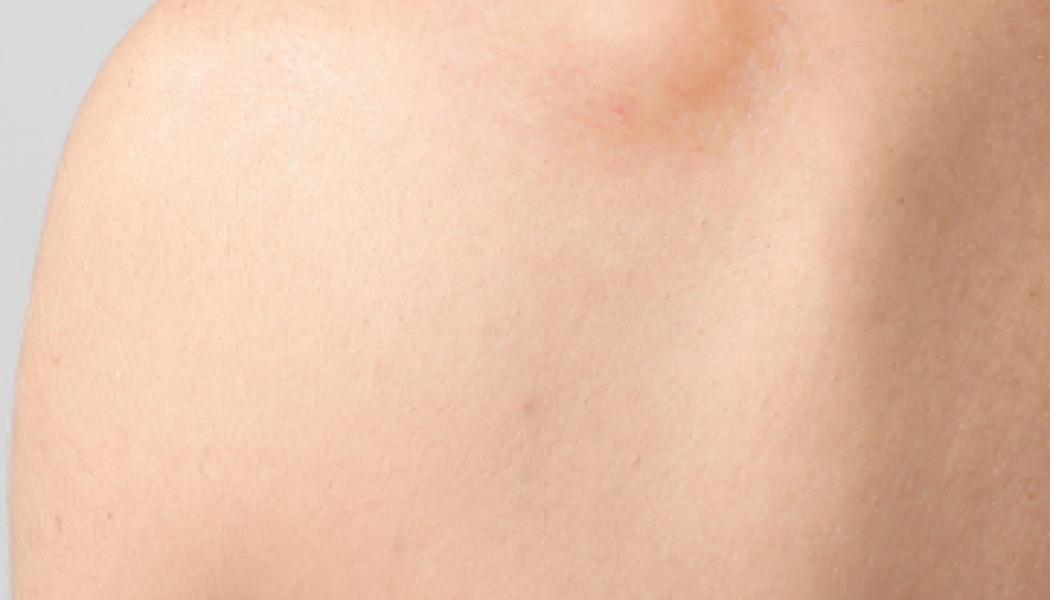 Lipoma Removal Procedure Description
