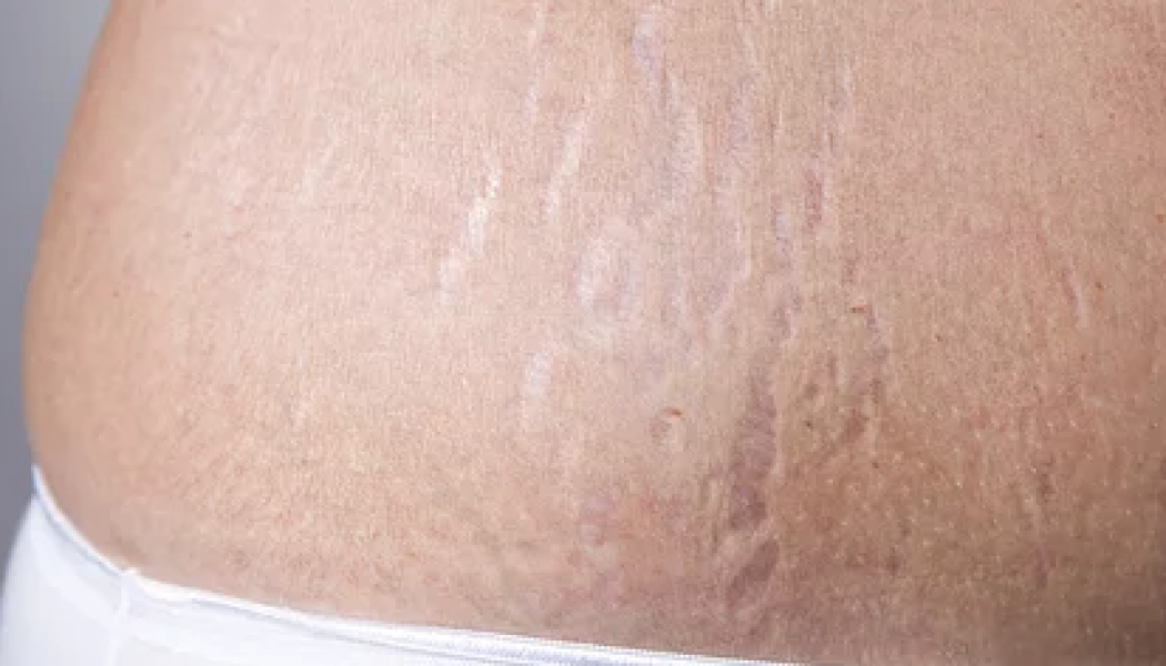 Stretch Marks Removal Procedure Description